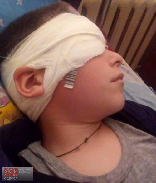 Трагедия в Измаильском районе: мальчику одноклассник проткнул глаз ручкой «фото»