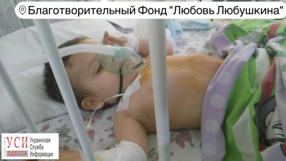 В Одессе двухлетний ребенок выжил после падения с 5-го этажа «фото»
