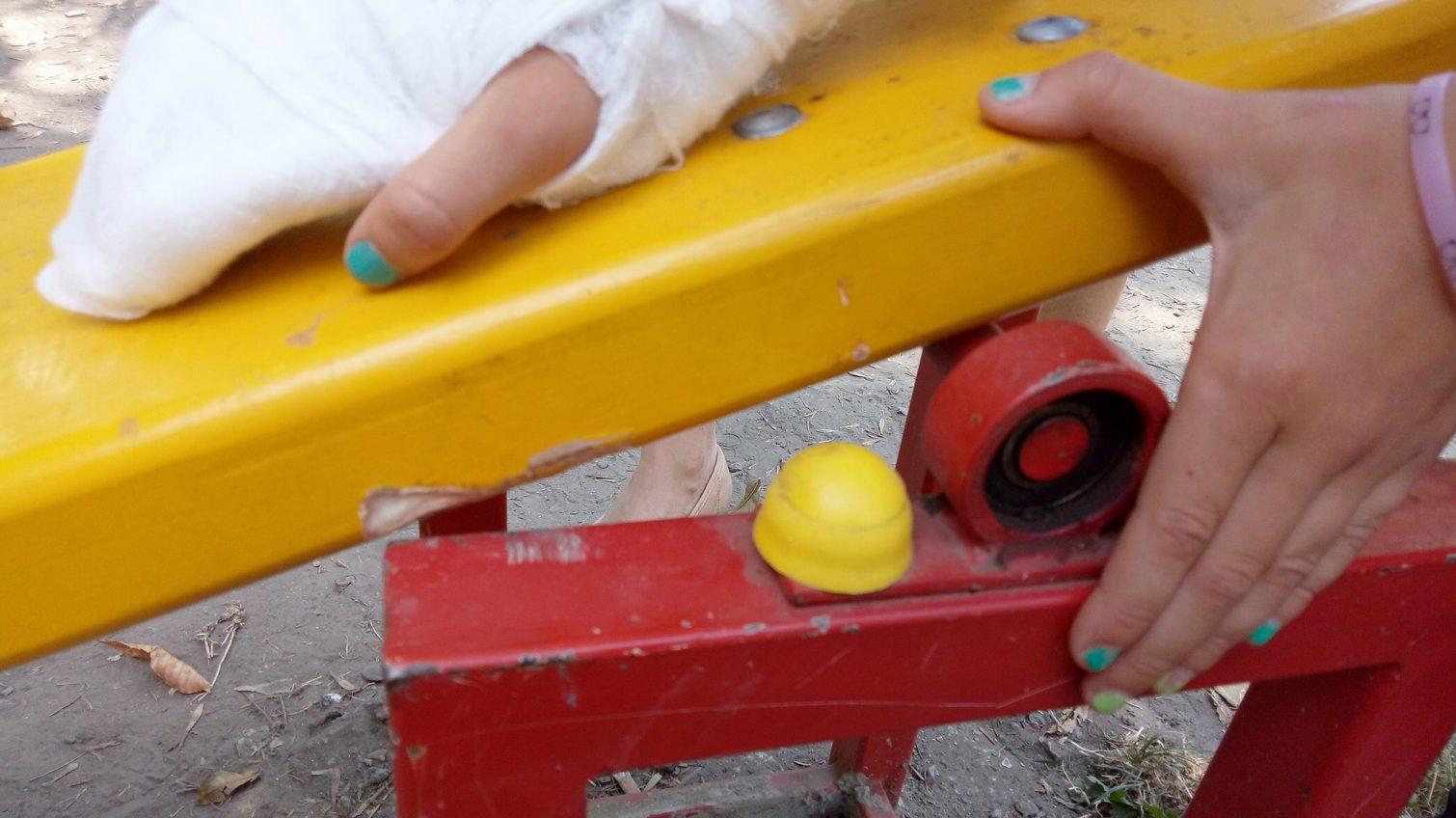 Травмоопасные «качели-ножницы» установили во дворе Малиновского района – школьнице чуть не отрезало палец «фото»