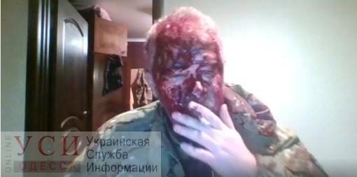 В Одесской области жестоко избили ветерана АТО (видео) «фото»