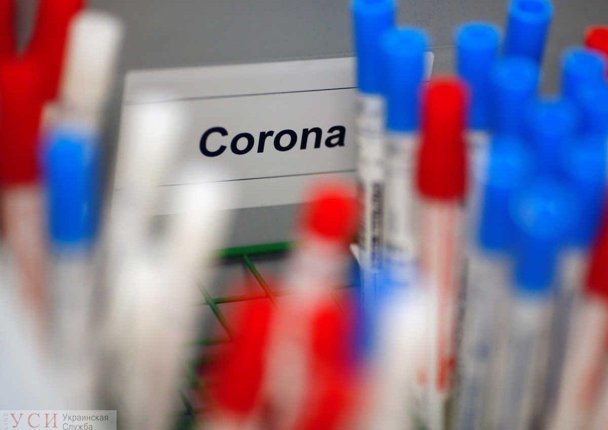 В Одессе закупают свои ИФА-тесты, которые позволяют определить переболевших коронавирусом «фото»