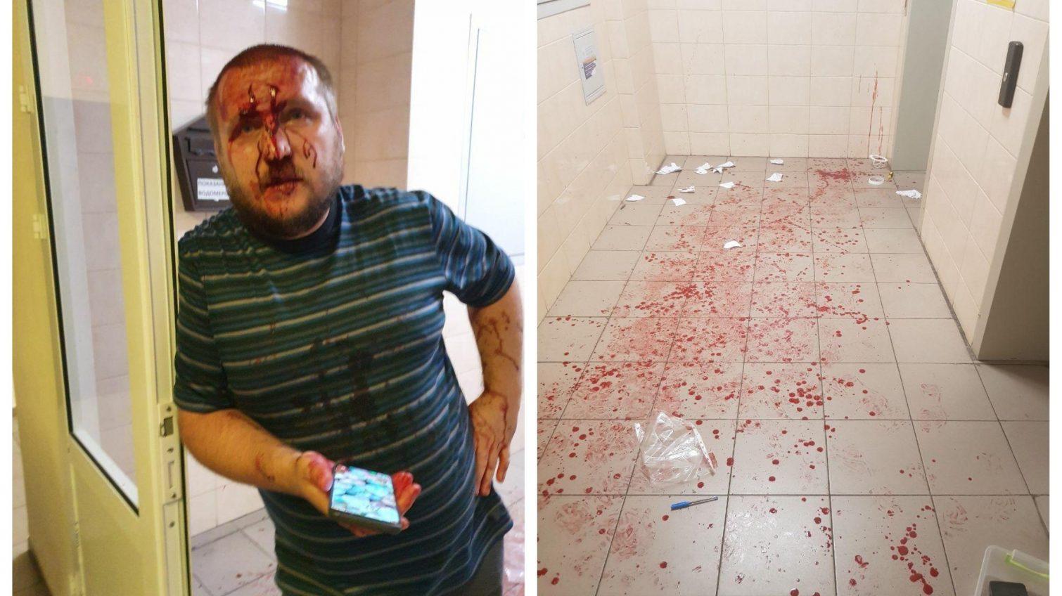 Скандал в новострое на Молдаванке: жильцы VS председатель ОСМД (фото) «фото»