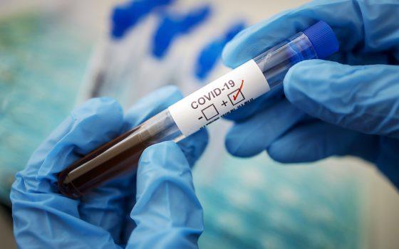 Третья волна эпидемии COVID-19: в Украине снова могут ввести локдаун «фото»
