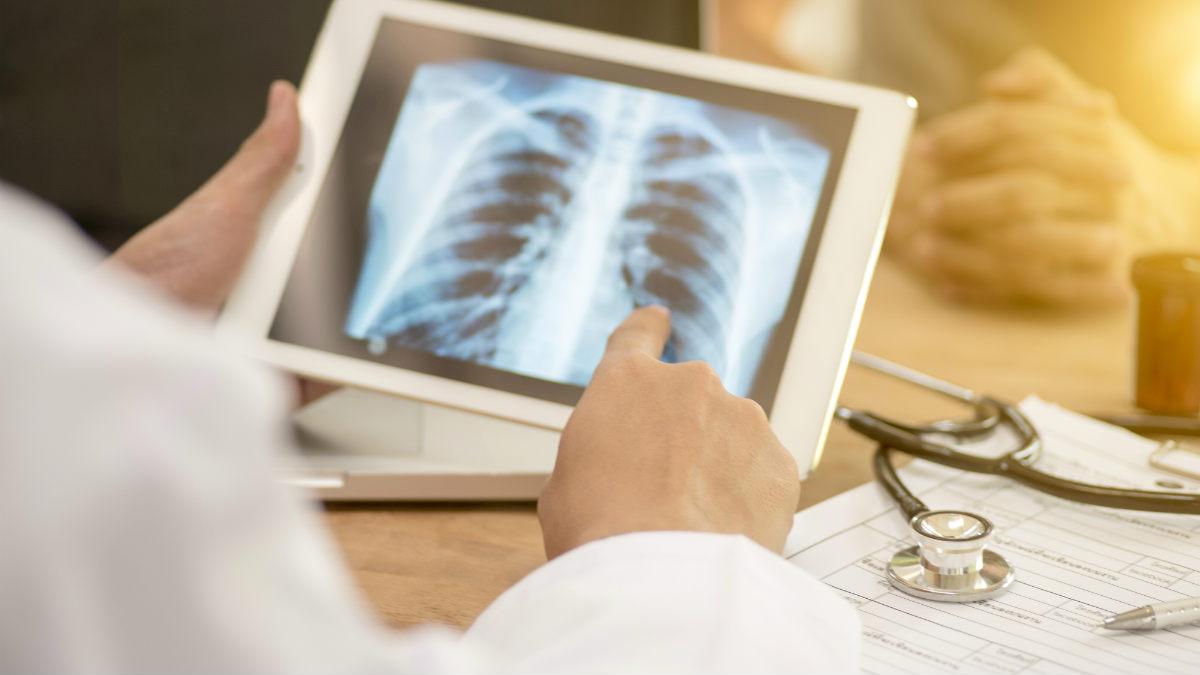 Одесская область оказалась на первом месте в стране по количеству больных туберкулезом «фото»