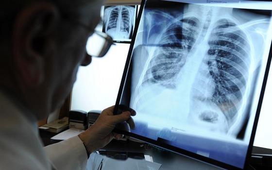 Какие осложнения приходят после коронавирусной инфекции «фото»